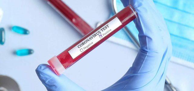 Broj obolelih od korona virusa se smanjuje u rumskoj, inđijskoj i staropazovačkoj opštini